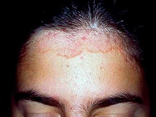 Dermatita seboreica caderea parului