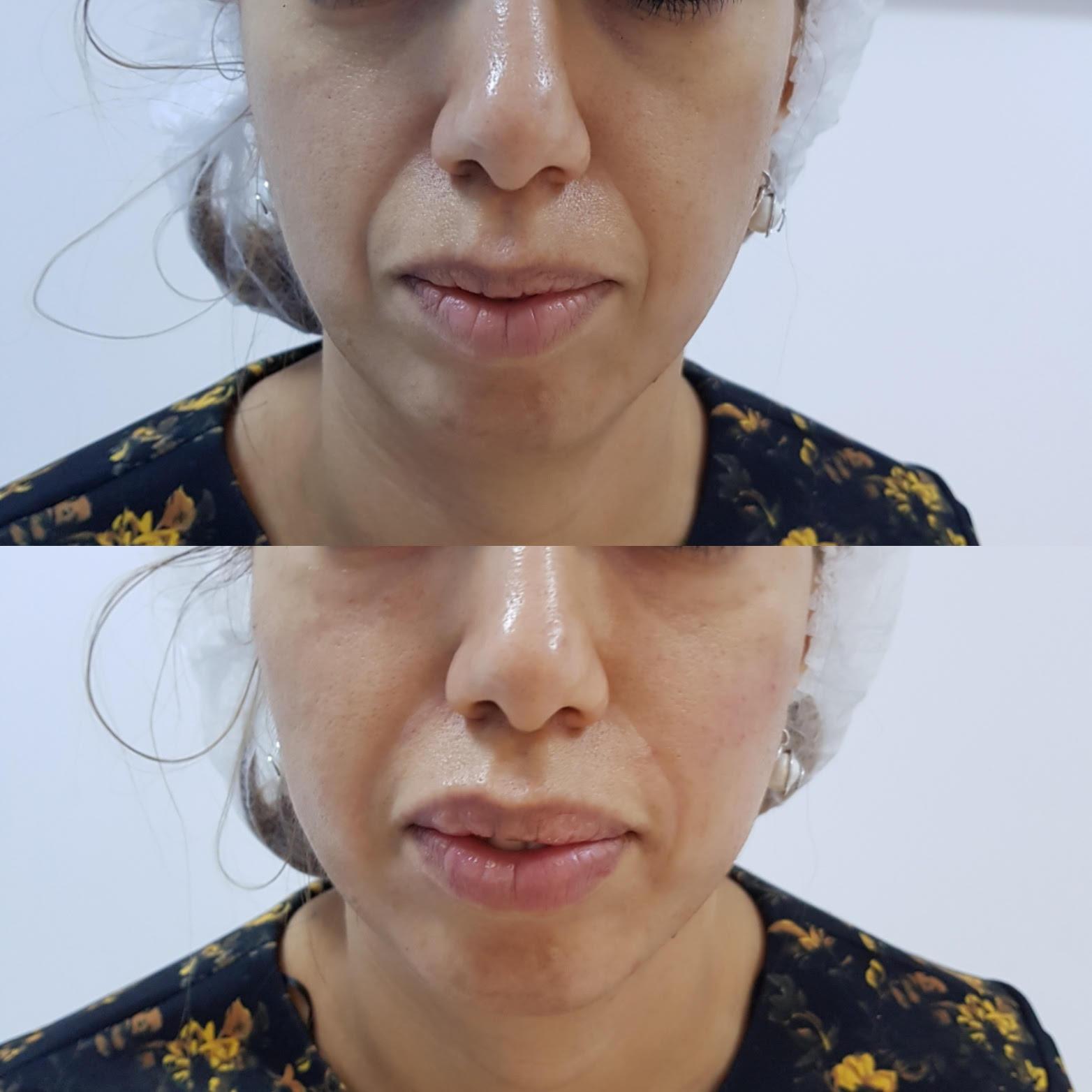 Injectare pometi acid hialuronic