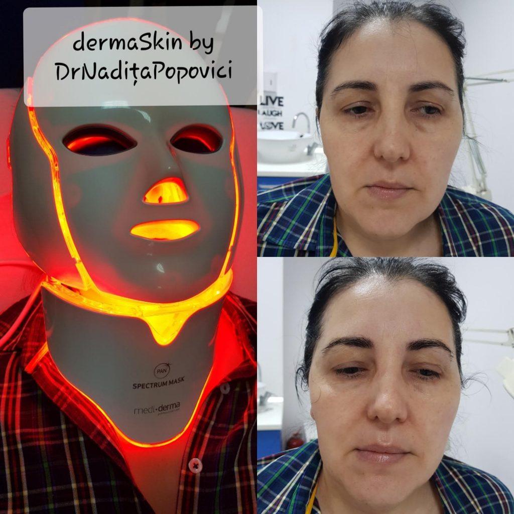 Spectrum Mask rezultate maxime intr-un timp mai scurt