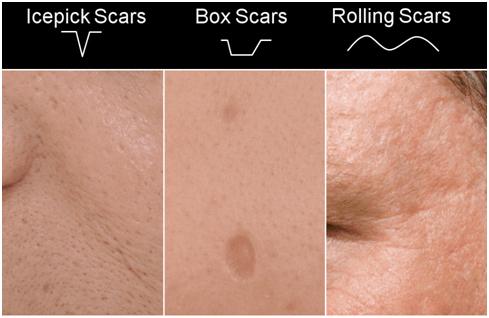 acnee cicatrics pierdere de grăsime)